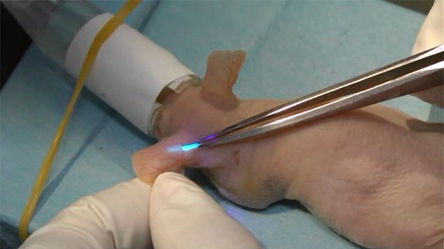 Glucose-Measuring Implant Glows Like a Christmas Tree When Sugar Levels Increase