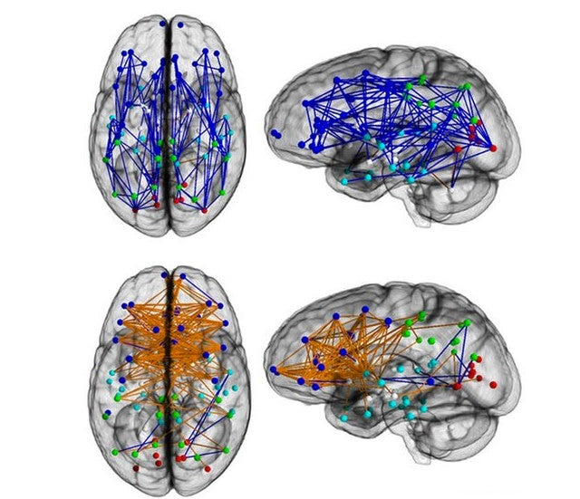 The Dramatic Differences in Male and Female Brain Connectivity