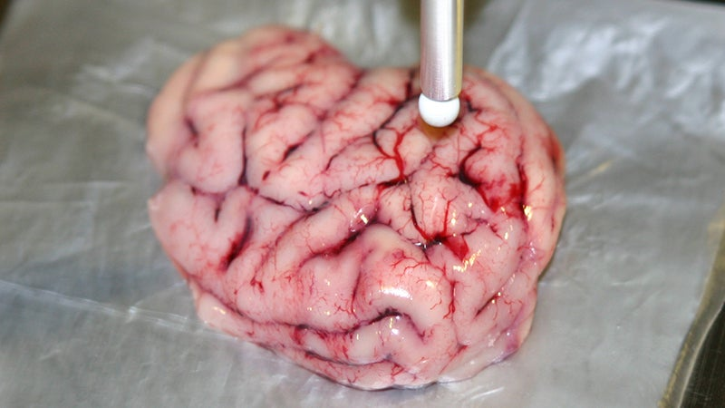 Smart Scalpel Can Distinguish Between Healthy and Cancerous Brain Tissue