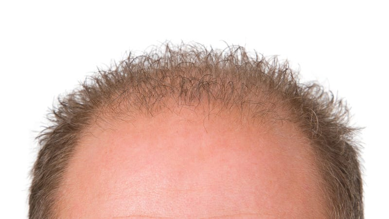 Scientists Just Took a Huge Step Towards Curing Baldness