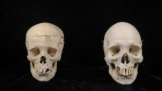 Which One of You Donated a Human Skull to Goodwill?