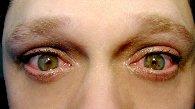 A Lady Grew Bones in Her Eyelids Because of a Dangerous New Surgery