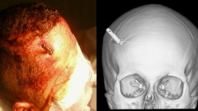 This Man Had a Taser Dart Stuck In His Brain and Didn't Even Realize