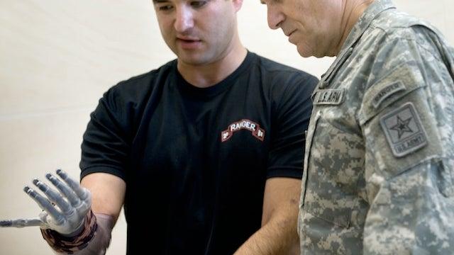 Lasers power Pentagon's next-gen artificial limbs