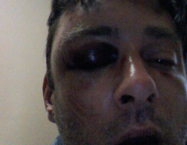 (Update) Yet Another Gay Man Was Attacked in New York City Last Night