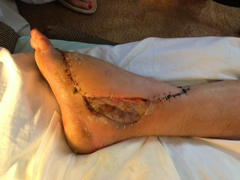 Snakebite Victim's Post-Surgery Foot Is Still Horrifying (NSFW)