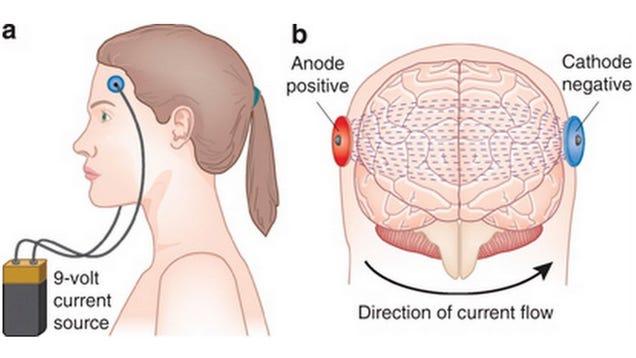 Prostate Stimulation Male G-Spot, the Pro-Gasm Prostate