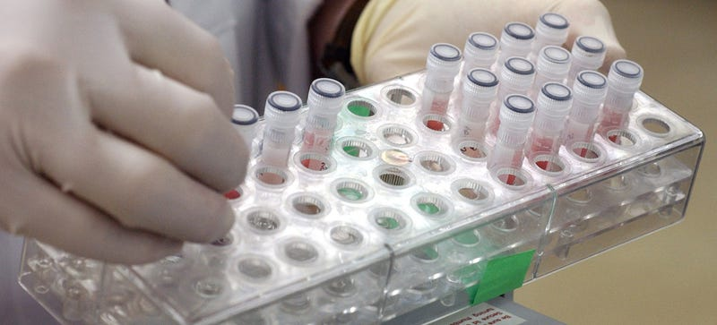 France Lost Thousands of Vials Containing the SARS Virus