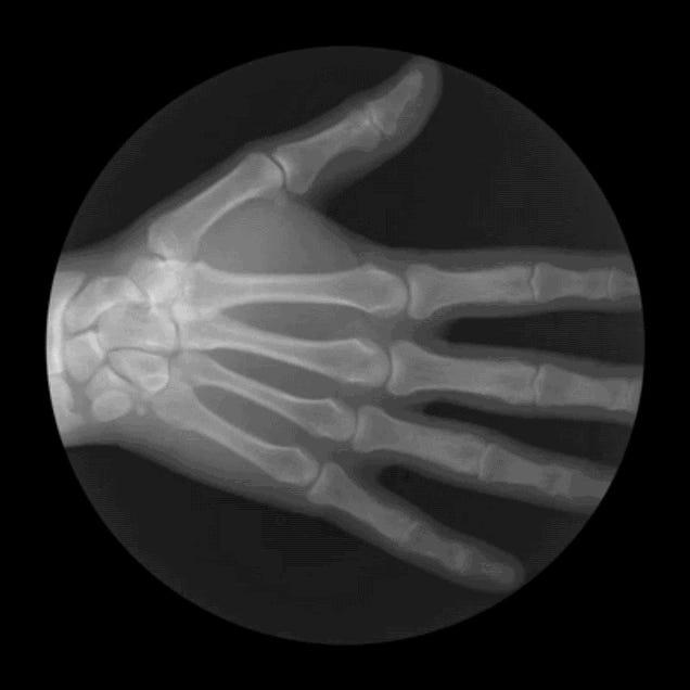 Mesmerizing Anatomical X-Ray GIFs