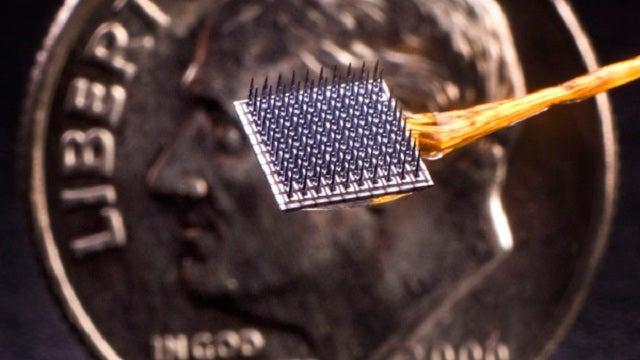 Brain-computer implant has passed 1000-day milestone