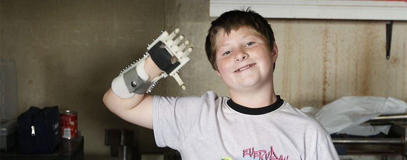 Science Is Turning Disabled Kids Into Awesome Cyborgs