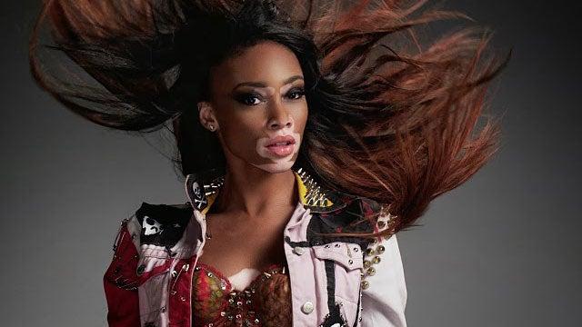 Gorgeous New Top Model Contestant Has Vitiligo
