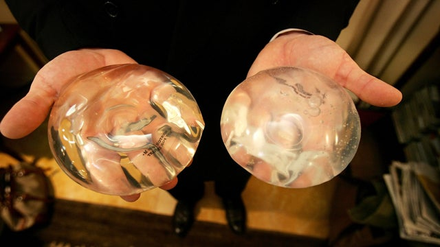 80 Year Old Woman Talks About Receiving The First Silicone Breast Implants