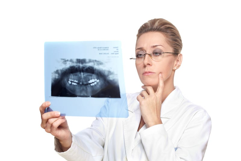 Study Finds Possible Link Between Dental X-Rays and Brain Tumors