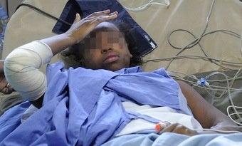 14-Year-Old Girl Survives Yemeni Plane Crash