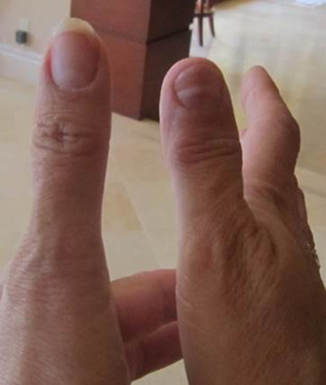 Owner Claims $225K Bentley Did This To His Wife's Thumb