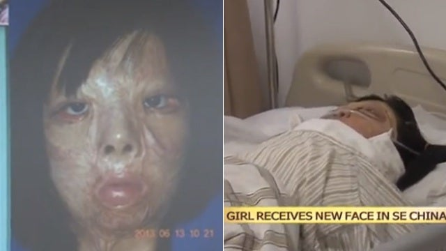 Burned Teen Grows New Face Parts on Her Chest (Warning: Graphic)