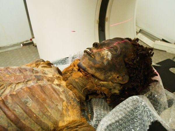 3500-year-old mummy of an Egyptian princess reveals the first known case of coronary artery disease