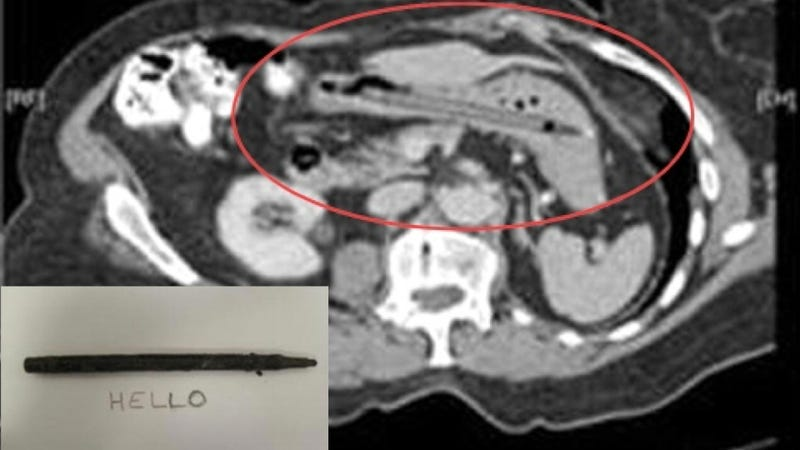 Working Pen Found In Woman's Stomach
