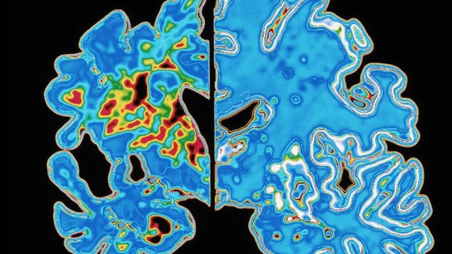 """Scientists Urge Caution in Wake of """"Transmittable"""" Alzheimer's Claim"""