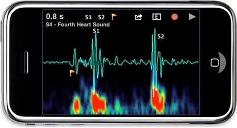 Stethoscope iPhone App Lets You Play Doctor—Or Nurse, If You Prefer