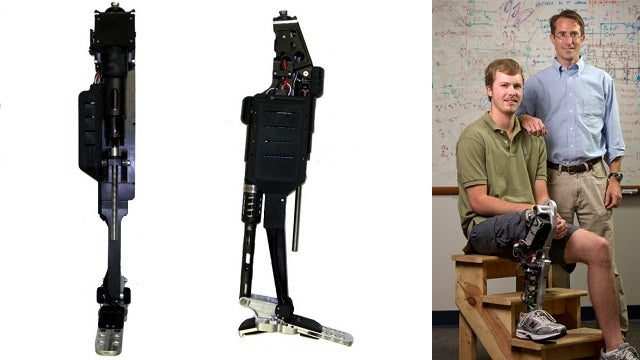 New Bionic Leg Thinks and Moves Like a Real Limb