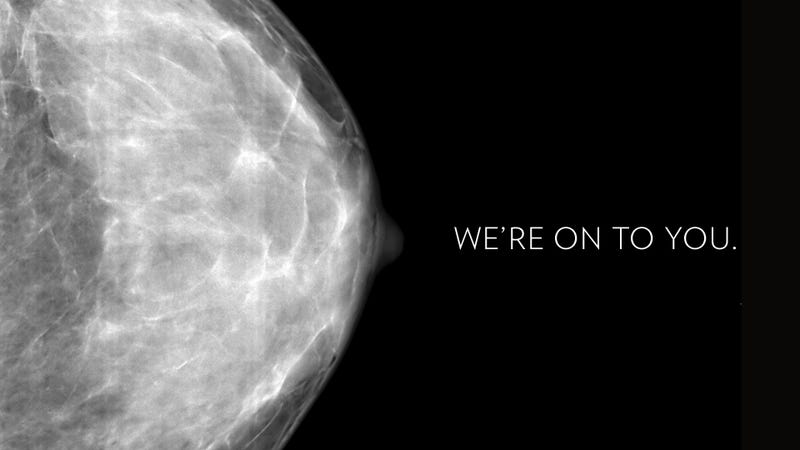 What You Need to Know About the Groundbreaking New Breast Cancer Study