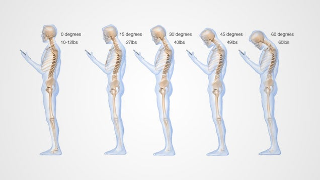 This Is What Looking Down at Your Cell Phone Does to Your Spine