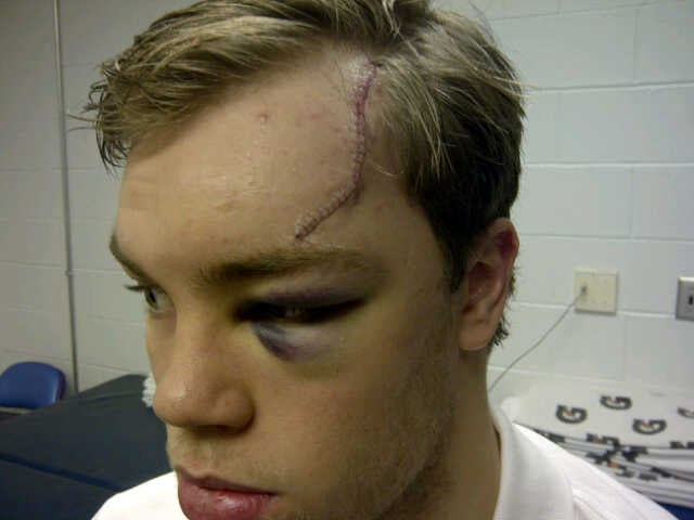 We Can Rebuild Taylor Hall
