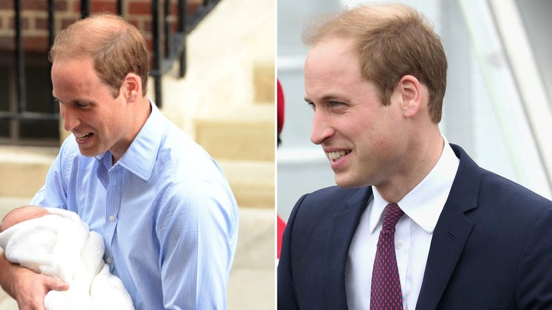 Who Has More Hair, Prince George or Prince William? An Investigation