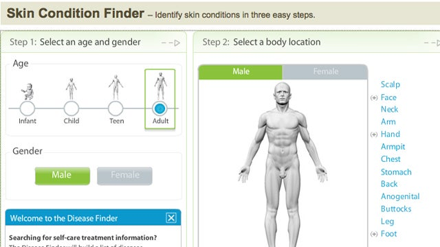 Skin Condition Finder Helps You Research Common Ailments