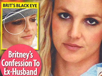 The Mysterious Case of Britney's Black Eye: Falsified Audio Edition