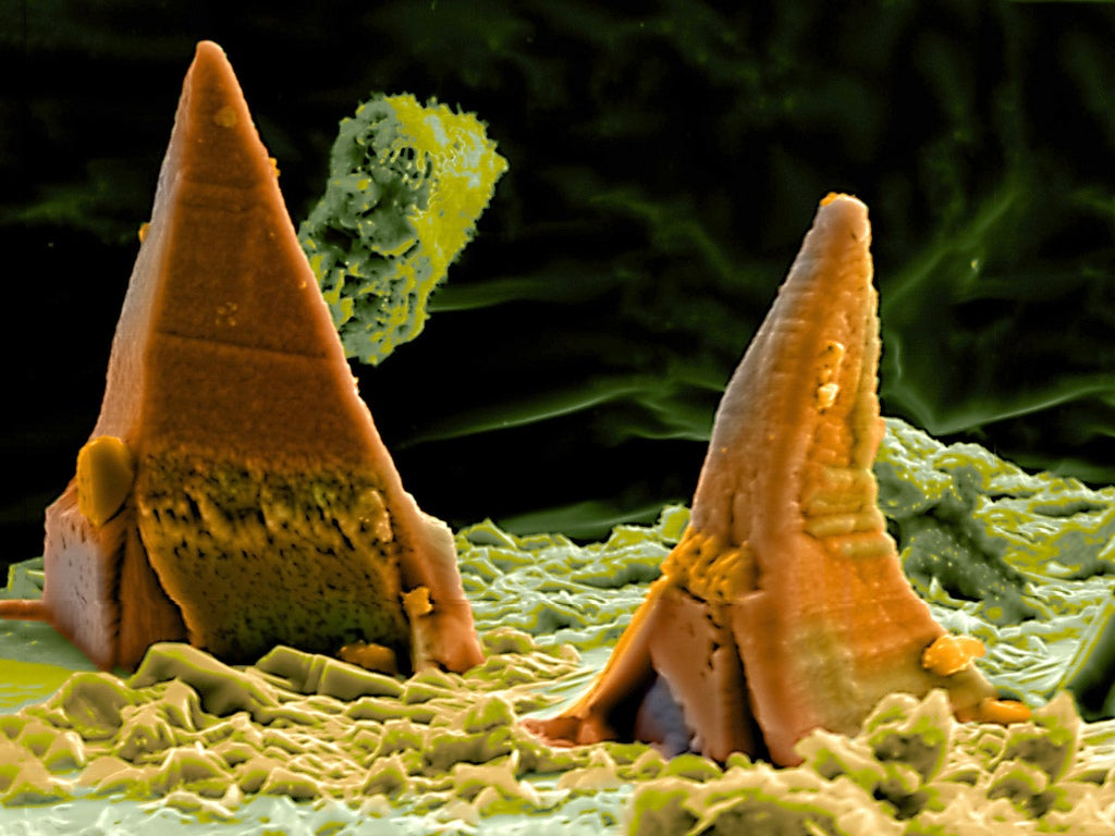 Photos of the Amazing and Gruesome World Under a Microscope