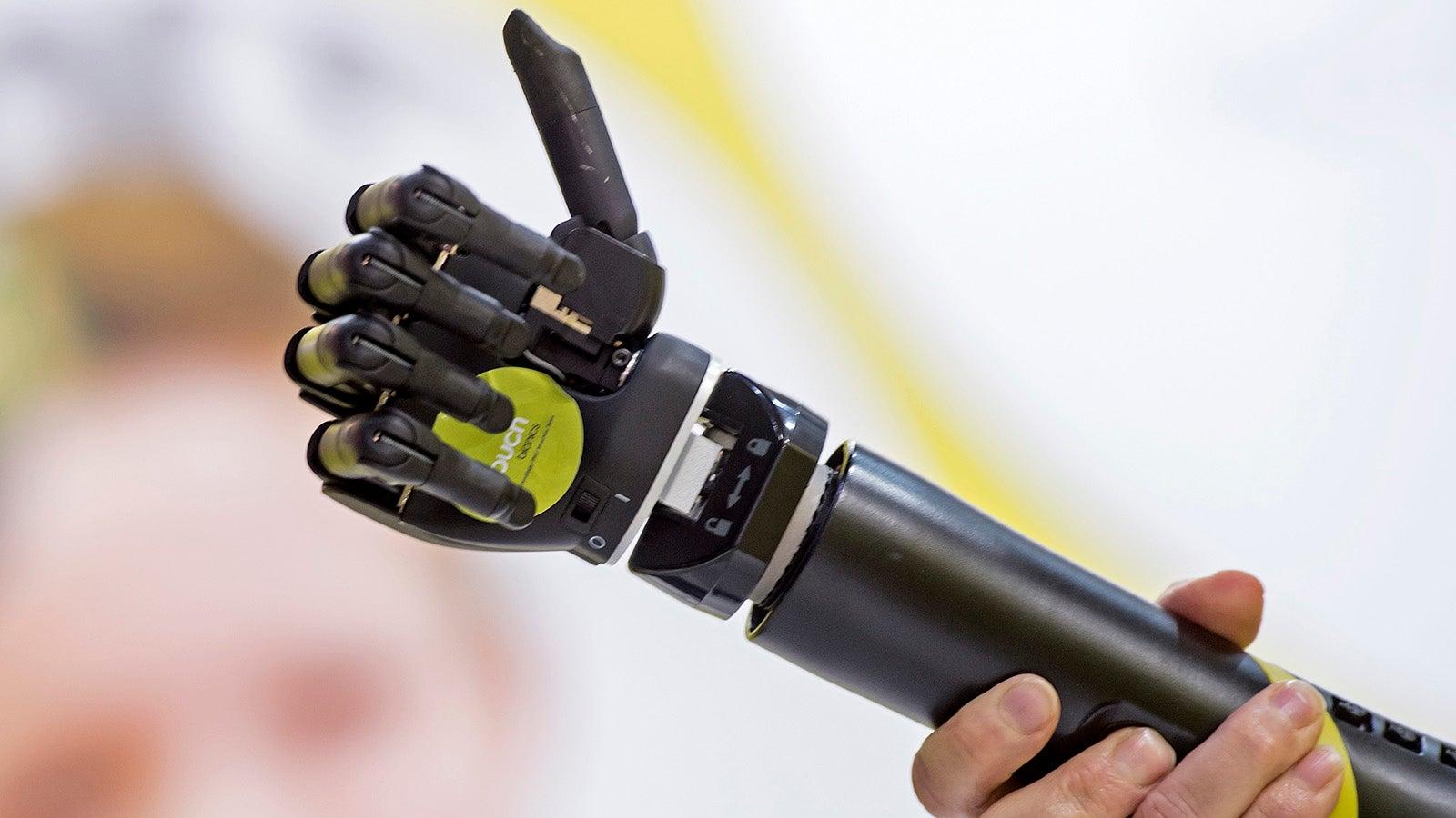 bionic-arms bionics cyborgs exoskeletons image-cache orthopedics orthopedy prosthetics