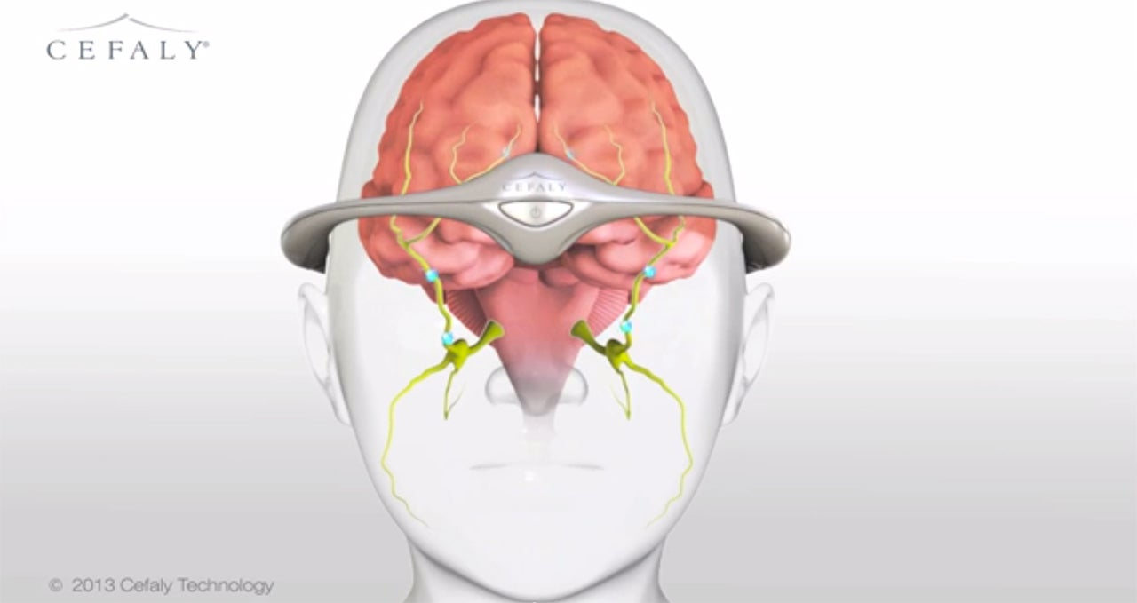 Migraine-Blasting Electric HeadbandIs Coming to The U.S.