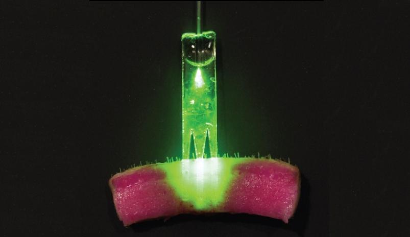 lasers nano-suturing photomedicine