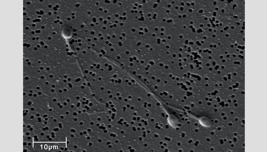 How Sperm Cells Get Stripped Down And Ready To Race