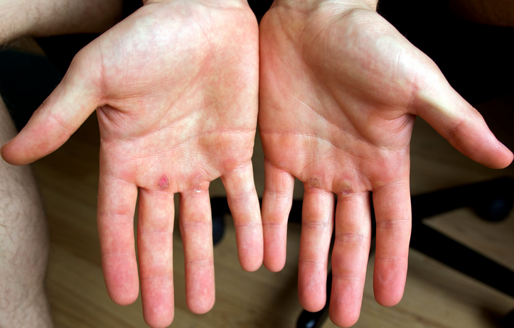 how to get rid of calluses on your hands