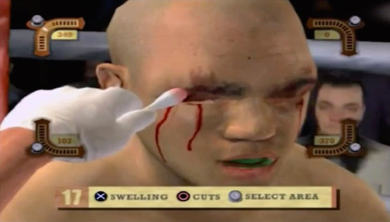 A Pro Fighter's Best Friend Is The Guy Who Stops The Bleeding