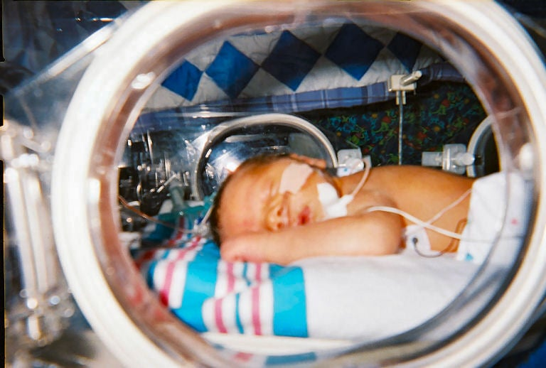 Why Are So Many Newborns Still Being Denied Pain Relief?