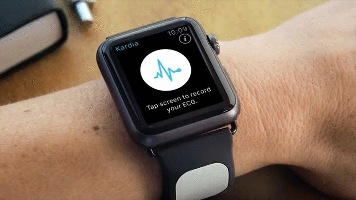 A Clever New Strap Brings EKG Readings to the Apple Watch