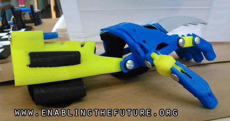 3D-Printed Wolverine Claws Turn Kids With Prosthetics Into Superheroes
