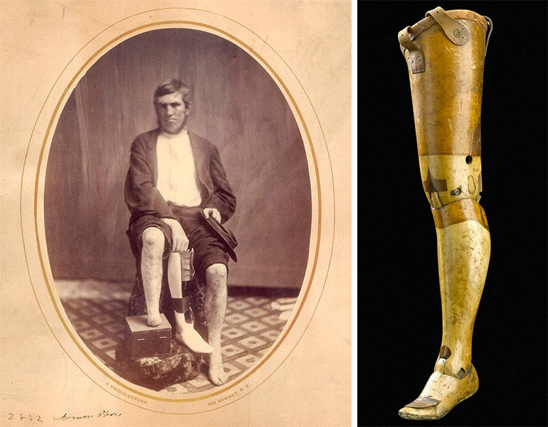 a history of prosthetics Bionics is a fascinating subject with a relatively short but interesting history when was bionics first discovered the term was coined in 1958 by an air force.