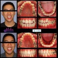 orthodontistlas