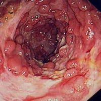 ulceritivecolitis