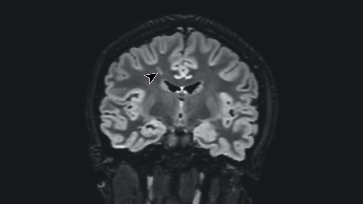 Doctors Say Mild Covid-19 Likely Triggered Psychiatric Illness in Two Teen Patients