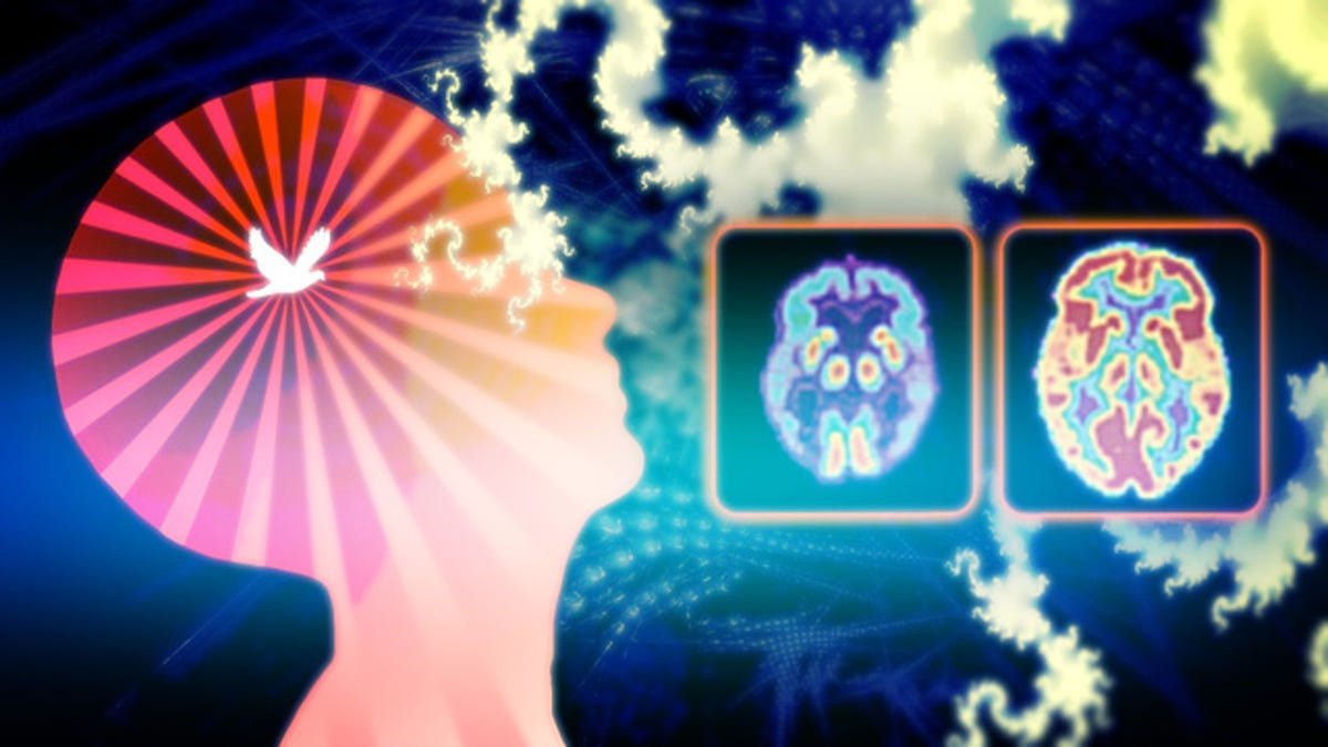What Happens to the Brain When You Meditate