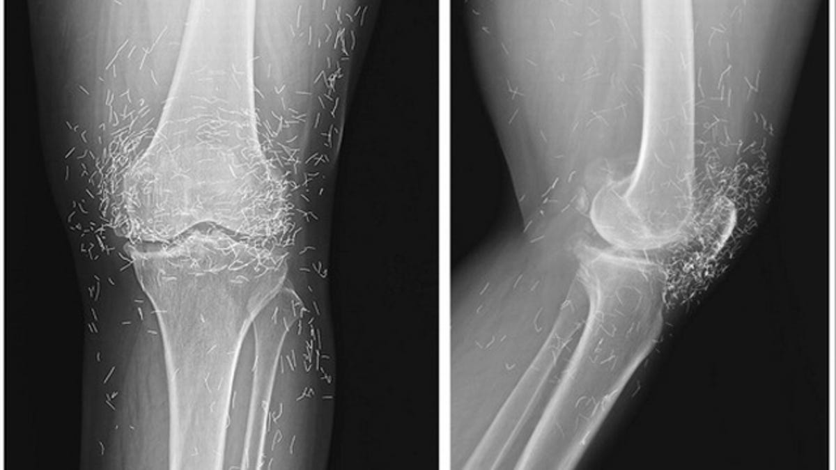 Doctors find hundreds of gold needles in a woman's knees