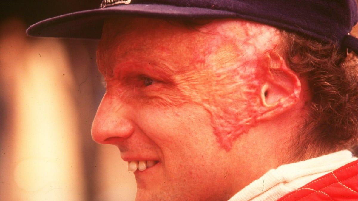 Dieser Tag in der Geschichte: Niki Lauda wird bei einem Formel-1-Unfall auf dem Nürburgring schwer verletzt