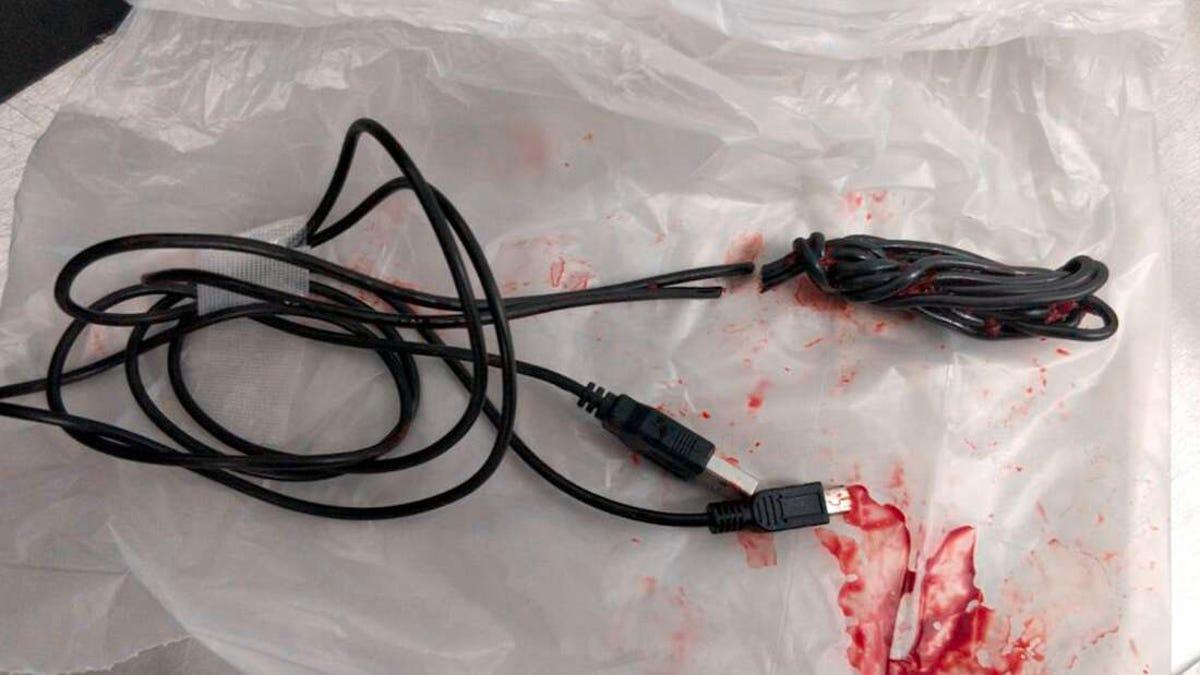 En urgencias al intentar medir el interior de su pene con un cable USB